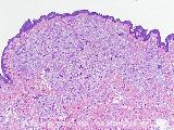 dermatofibroma monster cells dermatopathology fibrous histiocytoma soft tissue